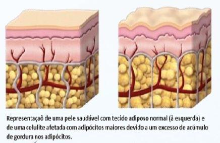 celulite-adipotrap
