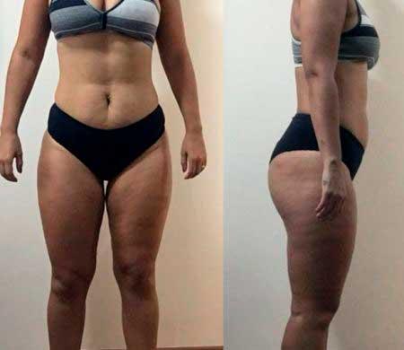 Cristina Coelho perdeu 15kg em 6 meses.